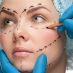 NOT ALL ABOUT LOOKS: Can Plastic Surgery Save Or Actually Improve Lives?